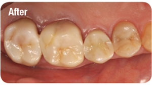 All-zirconia Lava™ Plus High Translucency Zirconia crowns at teeth 25, 26 and 27.