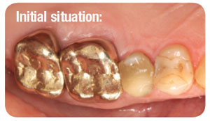 Large insufficient composite filling at tooth 25 and insufficient full-cast metal crowns at teeth 26 and 27.